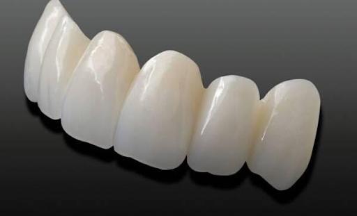Ngỡ ngàng với những thông tin bất ngờ của răng sứ Cercon HT