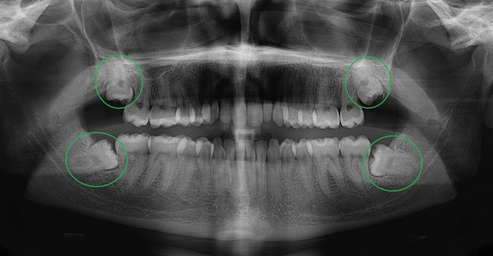 Răng khôn hàm trên và răng khôn hàm dưới