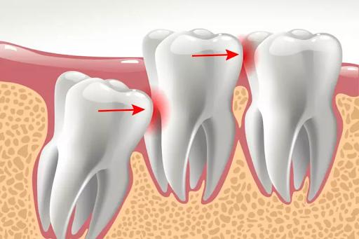 Răng khôn mọc làm tổn thương răng số 7