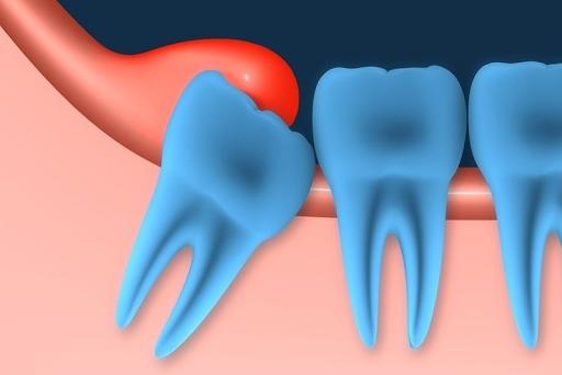 Răng khôn mọc lệch làm chèn vào các răng bên cạnh