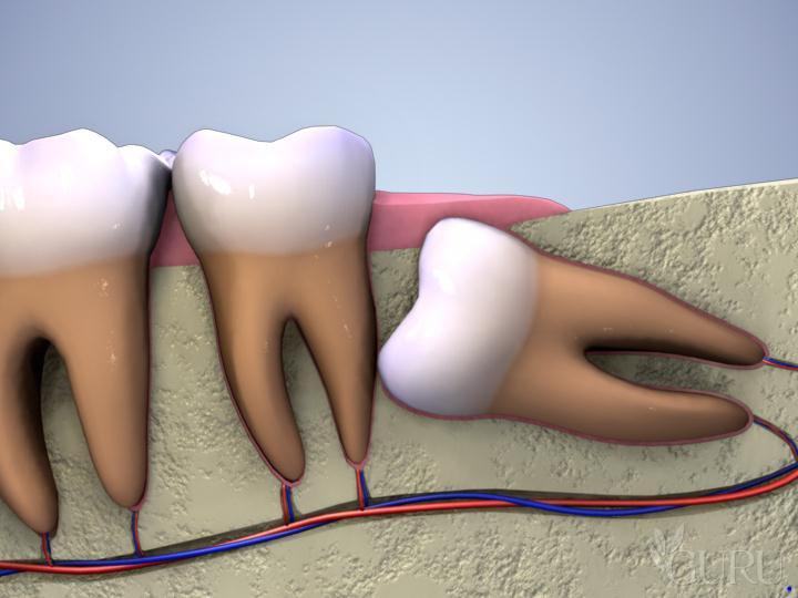 Răng khôn mọc lệch và hệ thống dây thần kinh