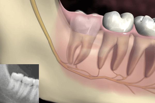 Răng khôn mọc thẳng không ảnh hưởng đến các răng bên cạnh