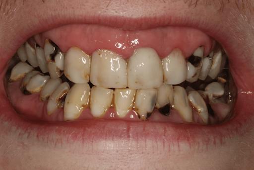 Sâu răng gây mất thẩm mỹ