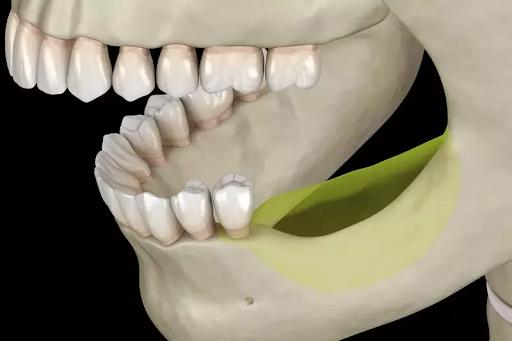 Tại vùng răng rụng sẽ bị tiêu biến như trong hình