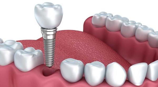 Muốn tháo mão sứ phải tháo cả trụ Implant - Implant xi măng