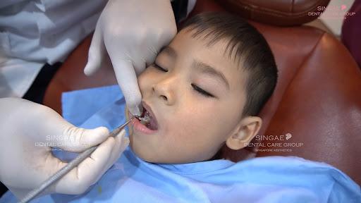Trẻ em trên 4 tuổi hàn răng tại Nha khoa Singae