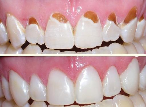 Trước và sau khi hàn răng
