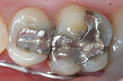 Vật liệu trám răng Amalgam