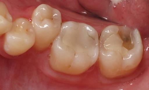 Vật liệu trám răng Composite