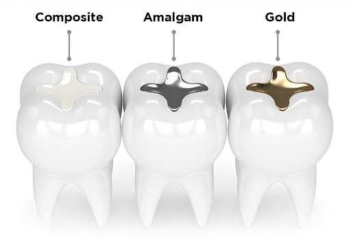 Vật liệu trám răng hiện nay