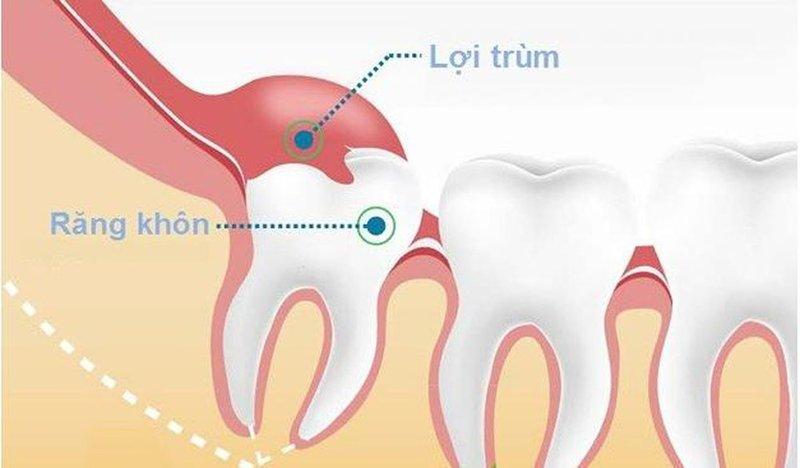 Viêm lợi trùm khi mọc răng khôn