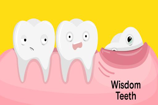 Răng khôn mọc trồi lên khỏi lợi