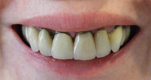 Làm sao để biết được bọc răng sứ Titan có bị đen viền không? Và cách chăm sóc đúng cách