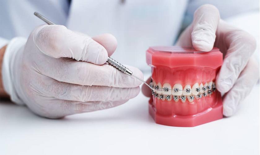 Cùng Singae tìm hiểu chi phí niềng răng thẩm mỹ là bao nhiêu?