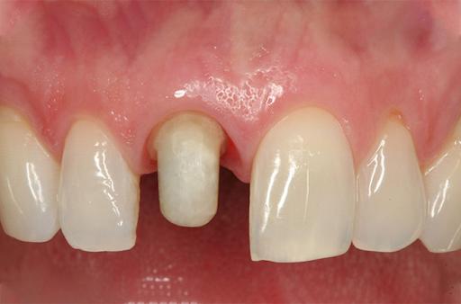 Lộ diện những bí mật về mài răng bọc sứ