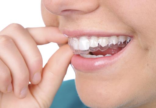 Bóc trần sự thật: Niềng răng 1 hàm giá bao nhiêu?