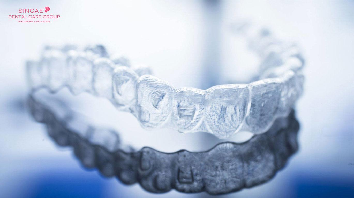 """3 cách để giữ khay niềng răng Invisalign luôn """"trong suốt"""""""