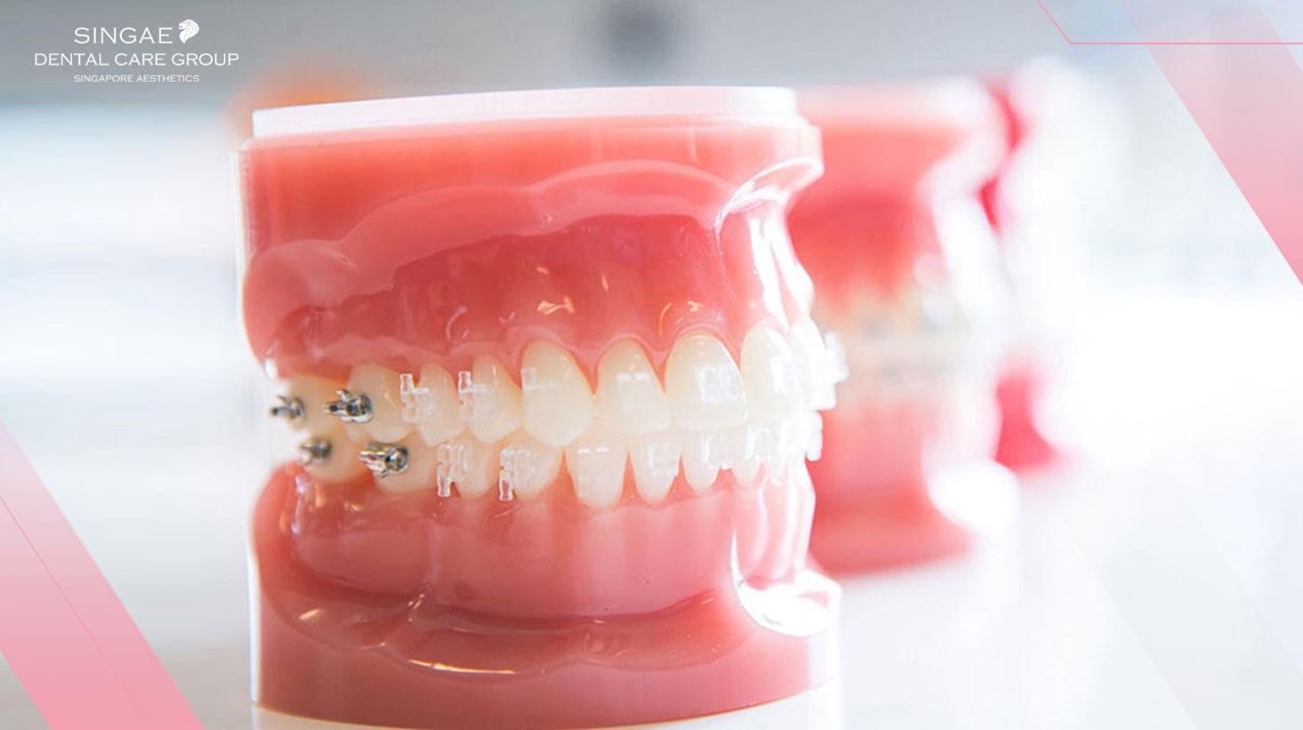 Cảnh báo: Những điều bạn nên biết về niềng răng mắc cài sứ tự buộc trước khi niềng