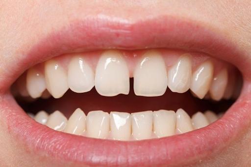 Bóc trần sự thật niềng răng thưa siêu nhanh …. chưa đến 1 năm