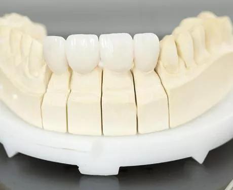 Sau đây chúng tôi sẽ giúp khách hàng so sánh răng sứ Katana và Venus qua từng tiêu chí cụ thể nhất.
