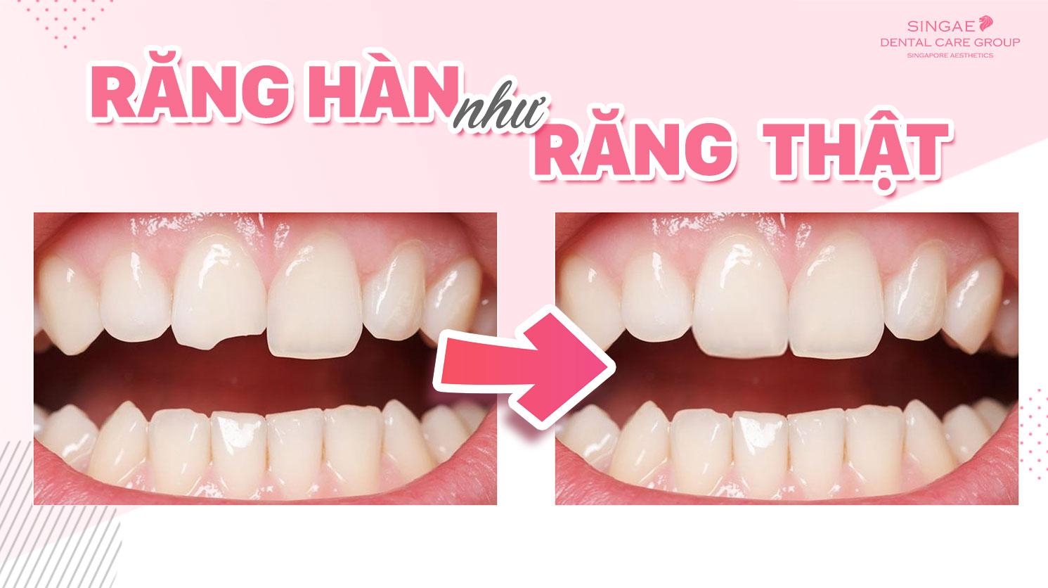Hàn răng mẻ – khắc phục khuyết điểm răng phi thường
