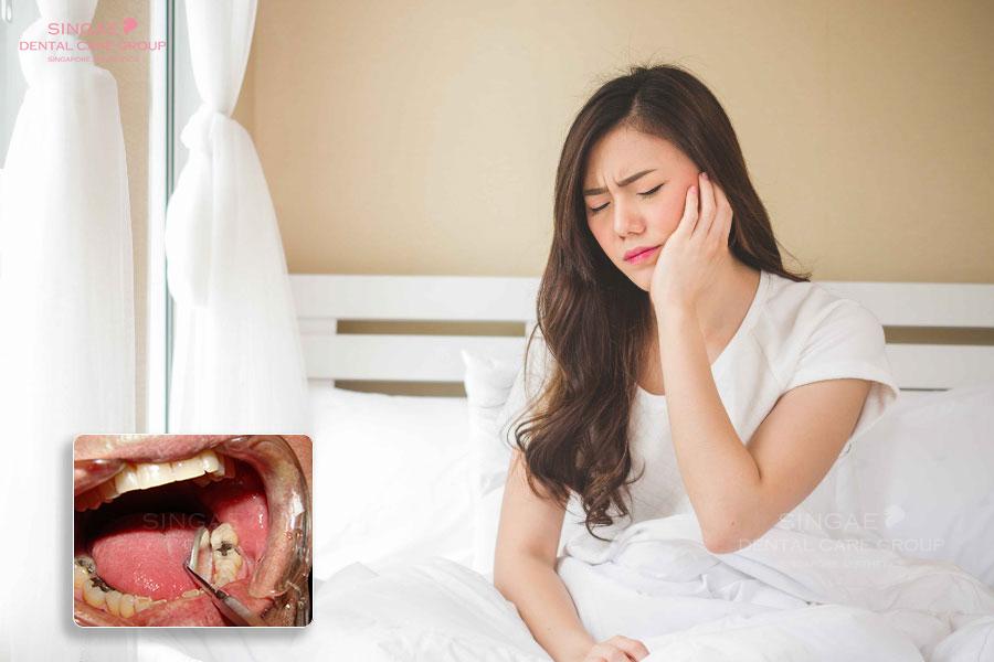 Nhức răng sâu lan vào tuỷ có nguy hiểm không? Cách giảm nhức răng sâu