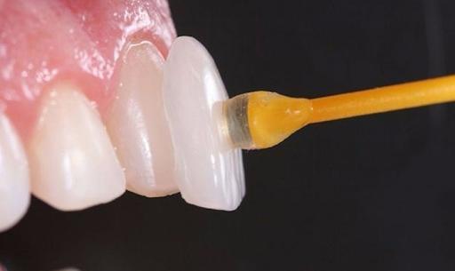Răng sứ veneer nếu được đúng kỹ thuật sẽ không giắt thức ăn