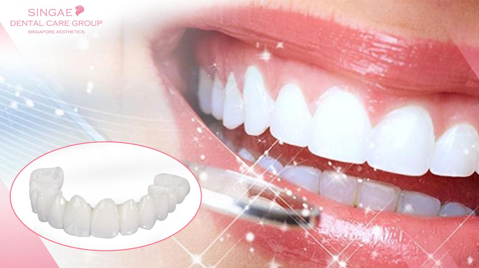 Giải đáp thắc mắc: Răng sứ Zirconia là gì? Răng sứ Zirconia có mấy loại? Bảng giá các loại răng sứ có đắt không?