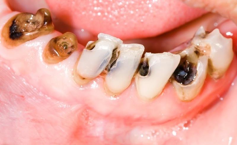 trám răng bao nhiêu tiền