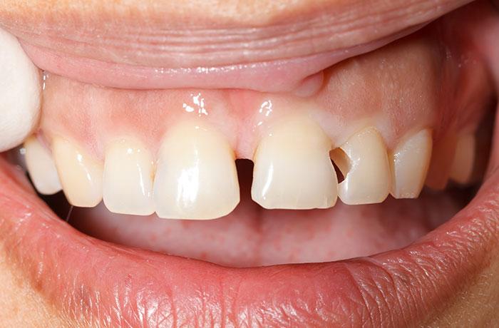 Quy trình trám răng mất bao lâu? Sau bao lâu thì phải đi trám lại?