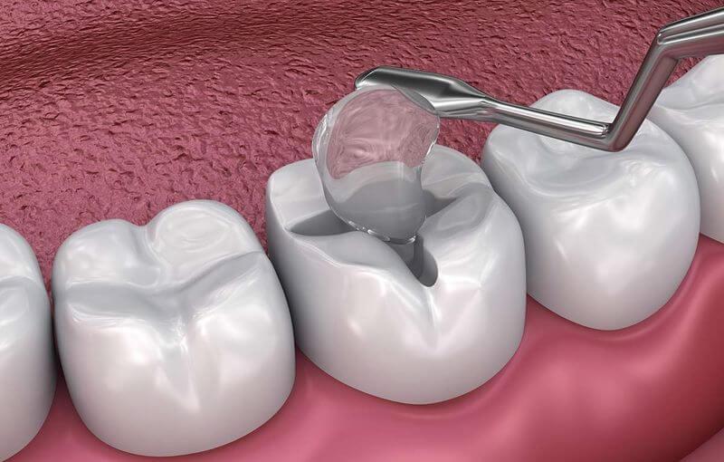 [ 6 Điều bạn cần biết về trám răng sâu ] giá tiền, cách chữa, quy trình,