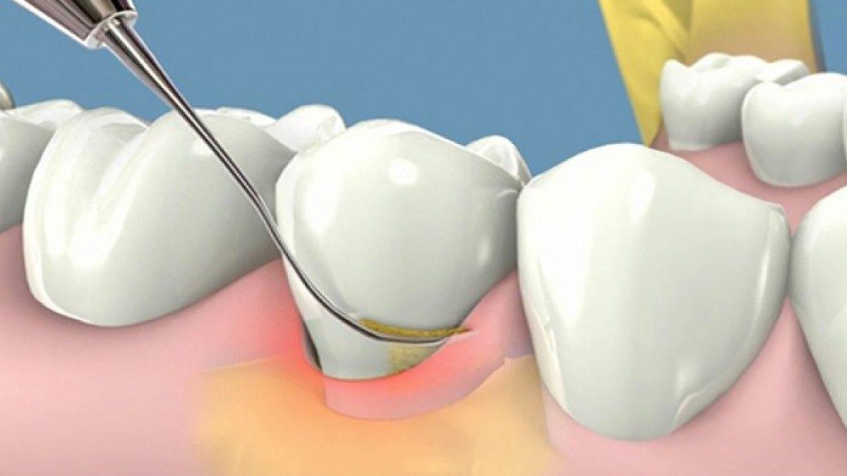 Điều trị viêm nướu răng như thế nào?