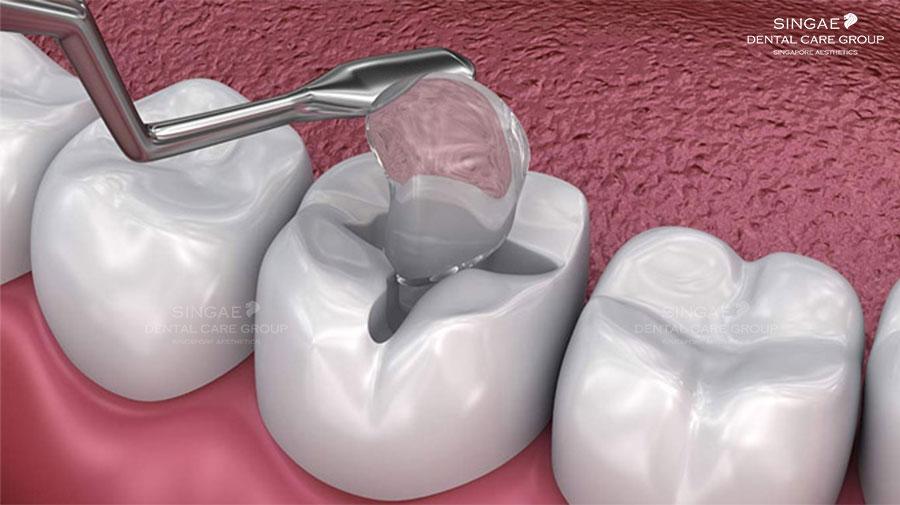 [ 6 Điều bạn cần biết về trám răng sâu ] giá tiền, cách chữa, quy trình